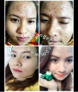Cream Dr Herbal Testimoni 2